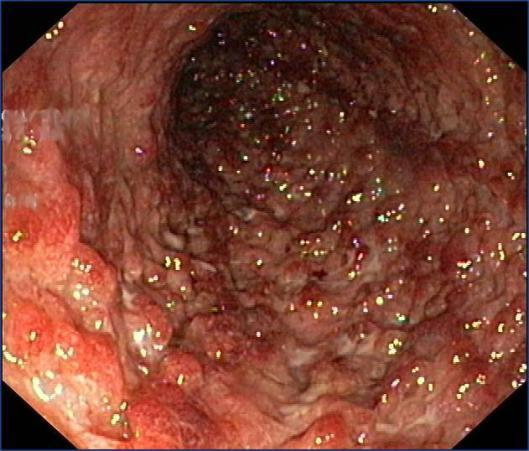 Colitis Ulcerosa in de dikkedarm
