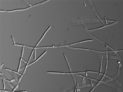 Candida albicans in de ziek makende schimmel vorm (hyphae)