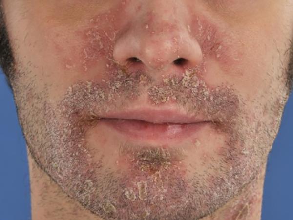 Behandeling psoriasis op het gezicht